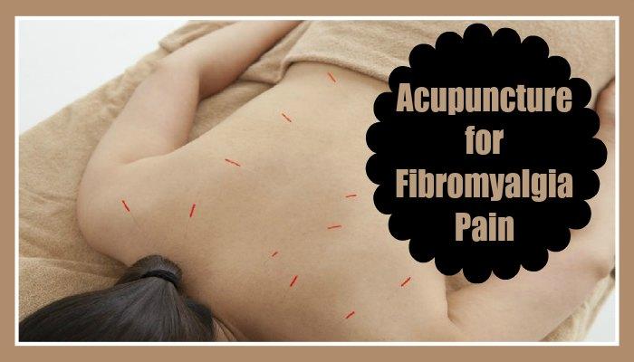 Acupuncture for Fibromyalgia Pain