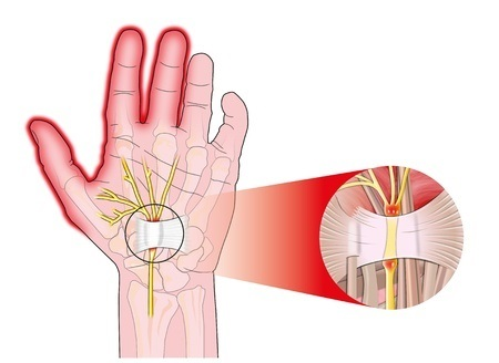 Carpel Tunnel Syndrome - Hand Illustrated
