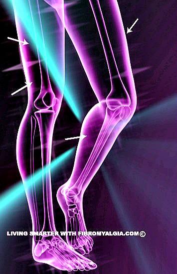 Fibromyalgia Chronic Muscle Pain